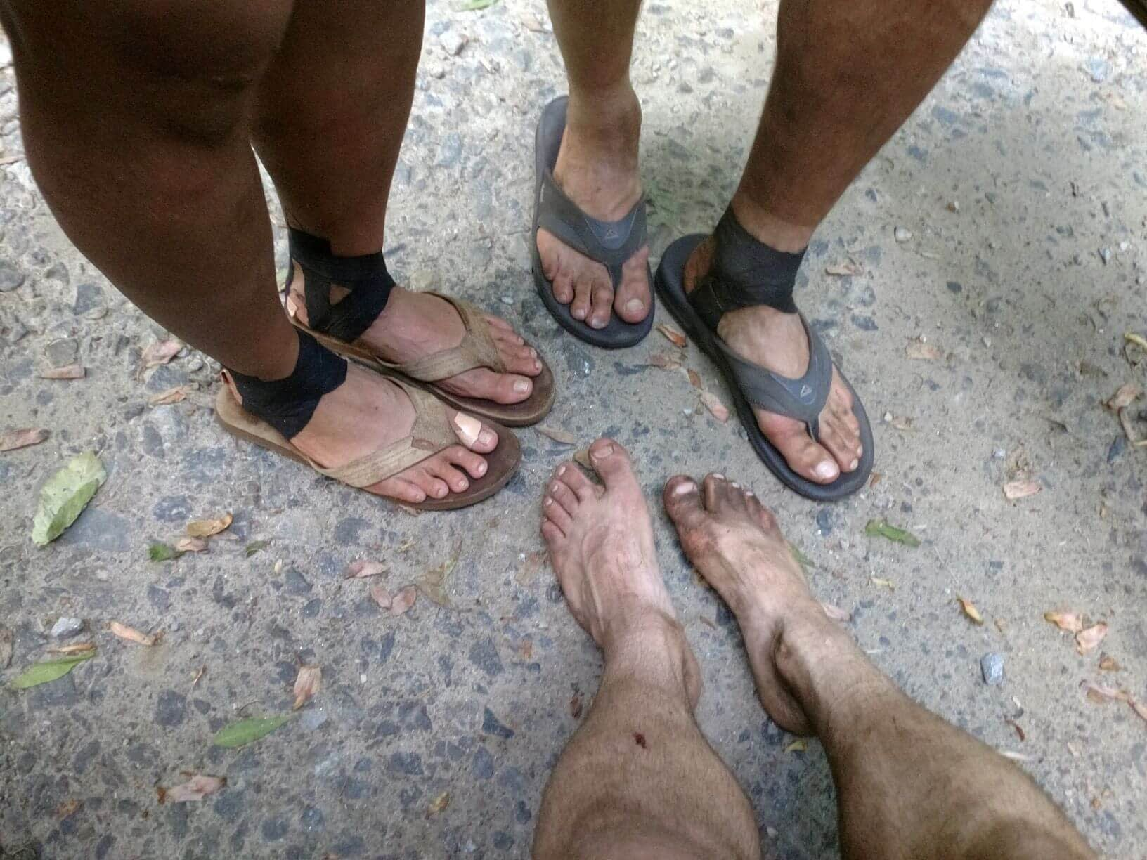 tape your feet to prevent hiking blisters